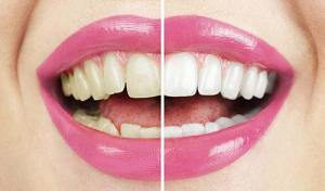 Teeth whitening before and after highlights how effective whitening is.
