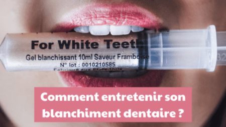 You are currently viewing Comment entretenir son blanchiment dentaire ?