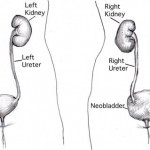 Neobladder Surgery: The Importance of Kegel Exercise