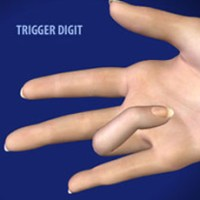 trigger finger release surgery