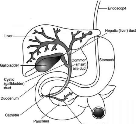 Endoscopic Retrograde Cholangiopancreatography ERCP