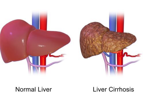 S D  has high rate of death due to liver diseases