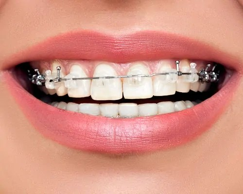 Clear Braces for Adults in Kissimmee FL   Kendrick ...