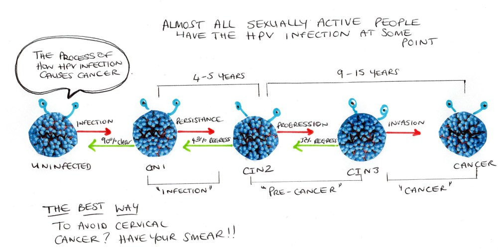 medium resolution of hpv progression diagram