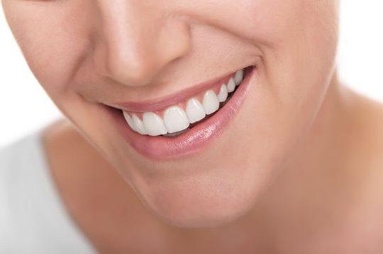 Teeth Whitening - Kerry Park Dental Practice
