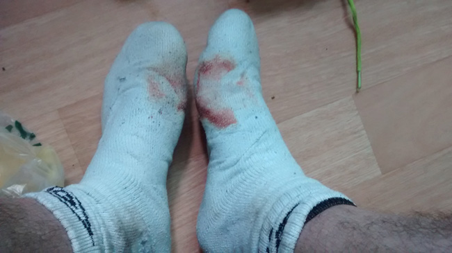 Bloody Socks!