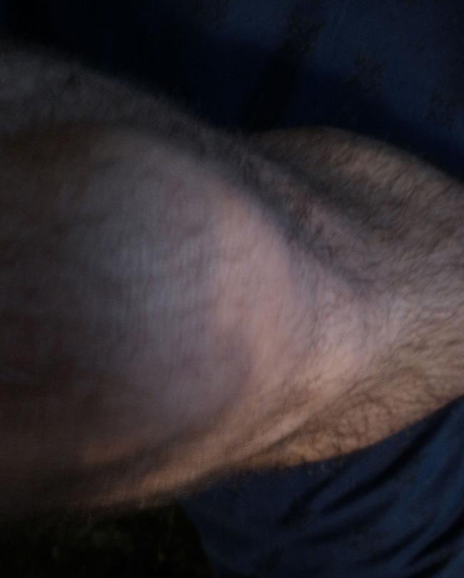 My Right Leg