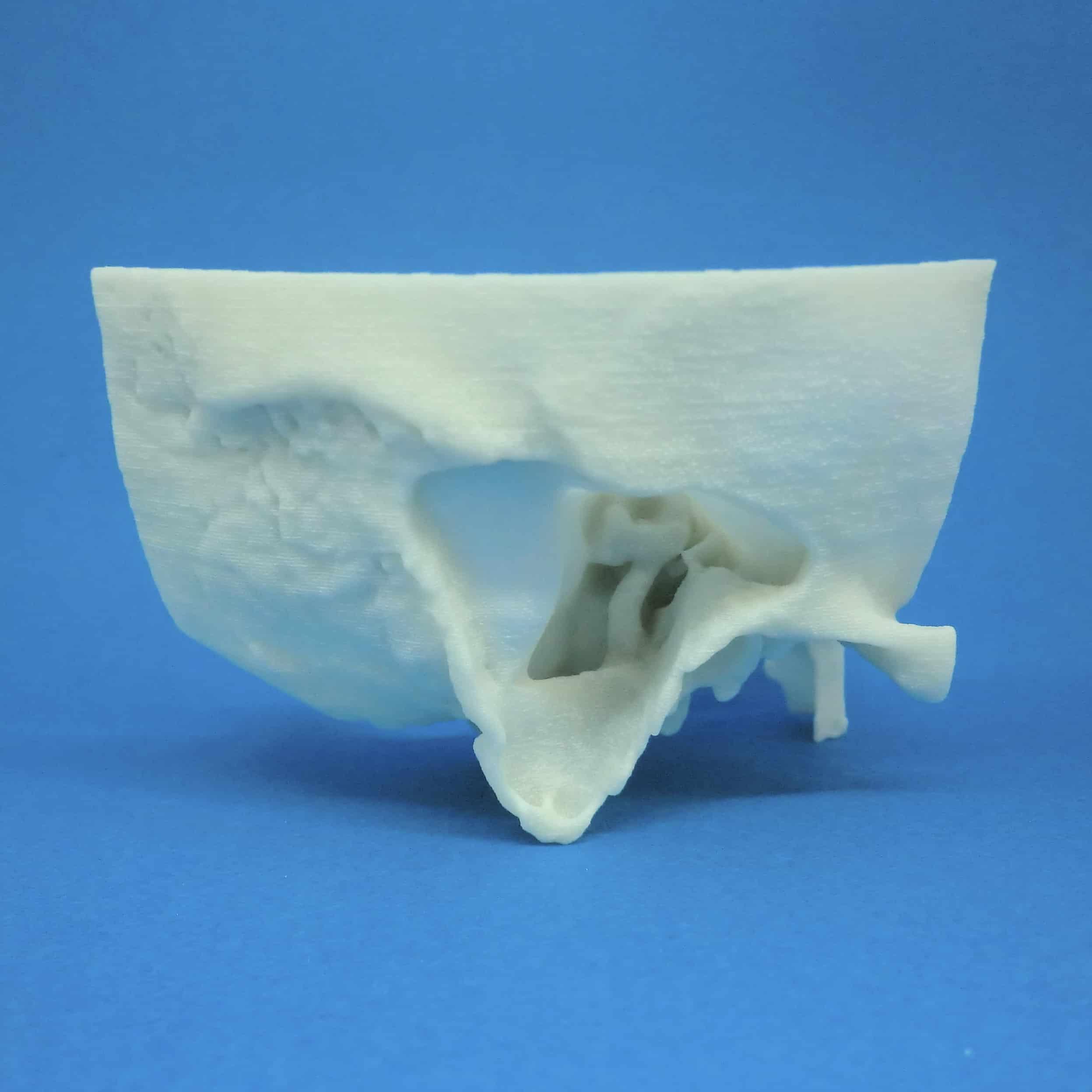 W側頭骨 削開済 2 C12-2の醫療模型   3DモデルのKEZLEX