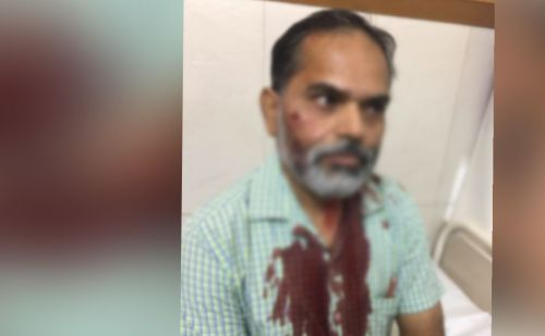 लोहे की रॉड से टीचर पर हमला कर छात्र फरार, तलाश में जुटी पुलिस