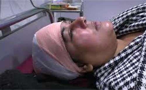 भतीजे ने बुआ के सर पर मारी 3 गोलियां, फिर भी घायल माँ को लेकर कार ड्राइव कर पहुंची अस्पताल