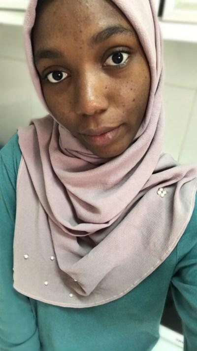 before skincare journey how to get rid of acne khairahscorner (3)