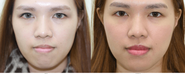Cheek Implants Before and After