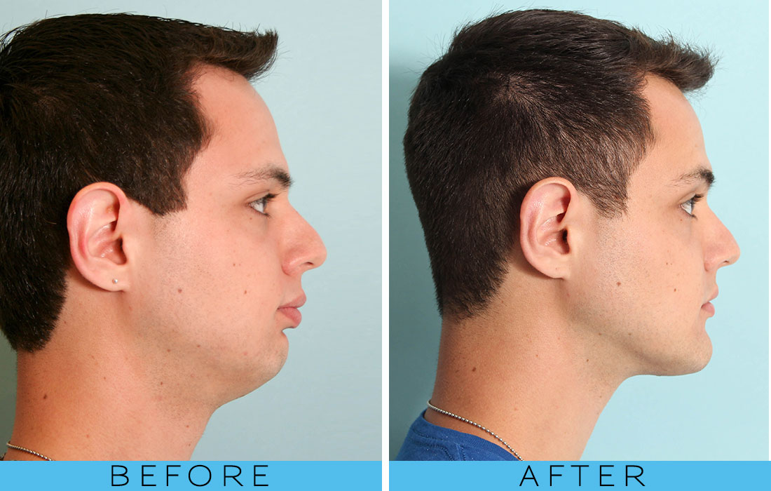 Chin Implant Before And After Khaleej Mag News And