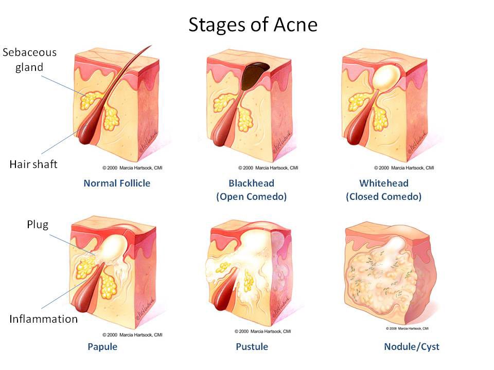 What-causes-acne-stages-of-acne