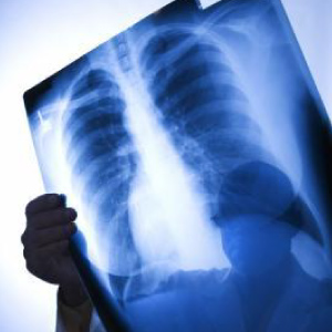 rib-x-ray