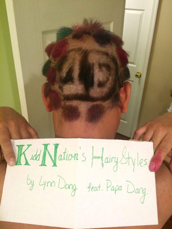 Hairy-Styles-winner