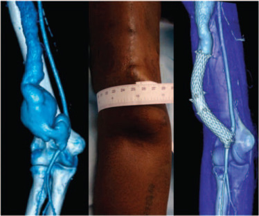 Endovascular repair of a hemodialysis fistula aneurysm ...