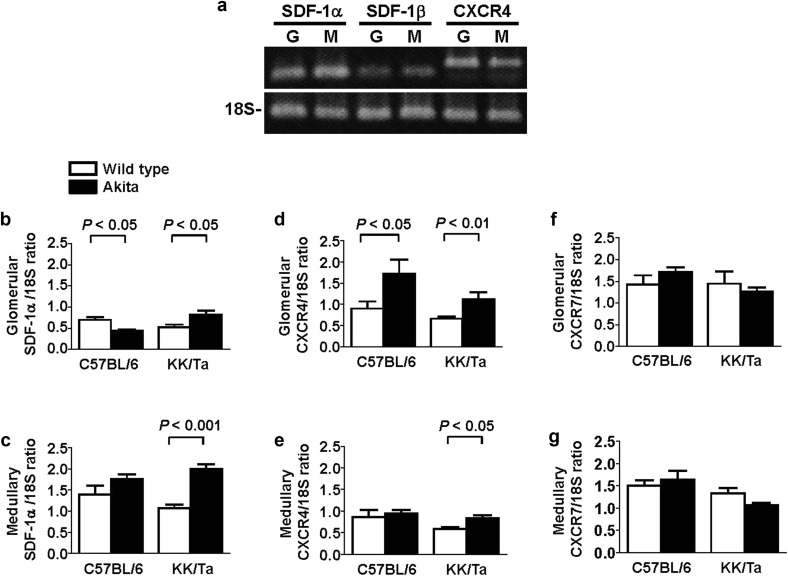 Stromal cell–derived factor-1 is upregulated by dipeptidyl