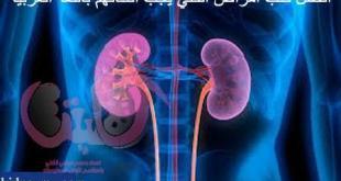 اهم الكتب العربية عن امراض الكلي والفشل الكلوي وزراعة الكلي