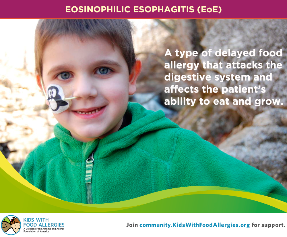 EoE belongs to the category of non-IgE mediated food allergies.