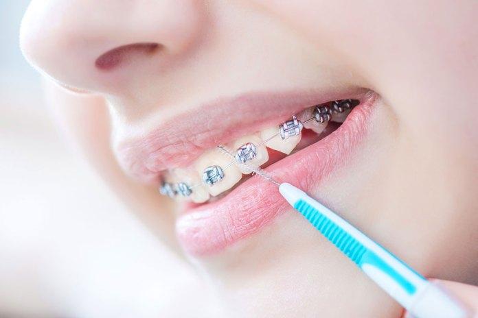 regelmäßig Zähne putzen
