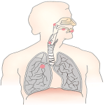 LUNG CANCER INFORMATION-TYPES, STATES, SYMPTOMS AND CAUSES