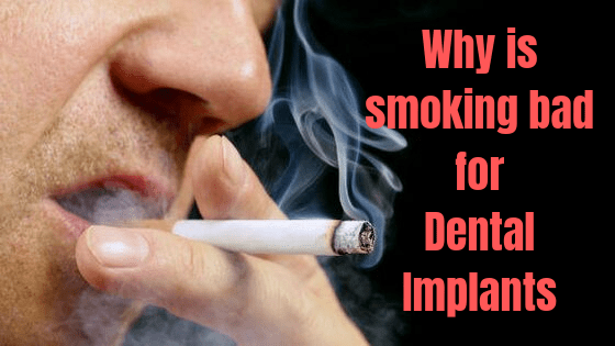 Why is smoking bad for Dental Implants