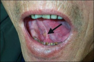 Cancer Pictures - Cancer of the Mouth, Lip & Tongue