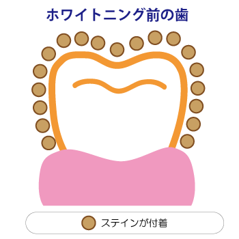 ホワイトニング前でステインが付着している歯のイメージ