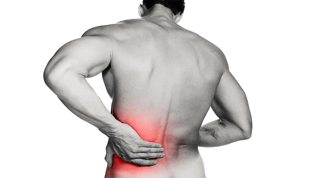 Dolor de espalda: Lumbago o Lumbalgia