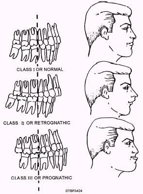 Classificazione di Angle