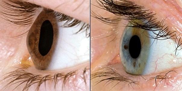 A causa di un'anormalità strutturale delle fibre collageneche compongono lo stroma corneale, si osserva un progressivo assottigliamento ed allungamento della cornea verso l'esterno, forma distrofica dettaectasia, causata dalla pressione intraoculare: si verifica, come come conseguenza, un incremento della curvatura corneale che diviene irregolare, con perdita di sfericità, ed assumeun tipico apice di forma conica.