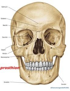 prosthion