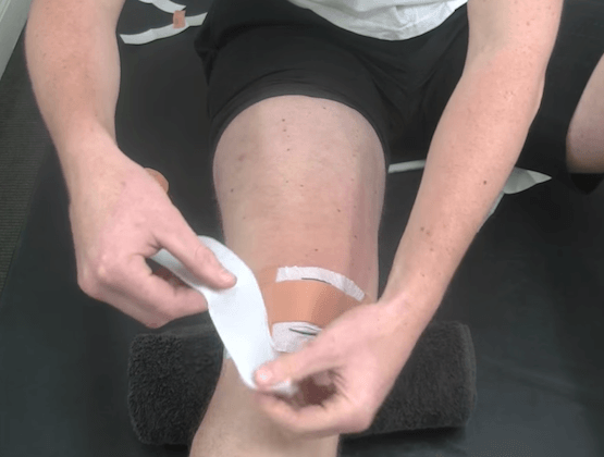 Runner's Knee (PFP) Taping Techniques for Pain Free Exercise