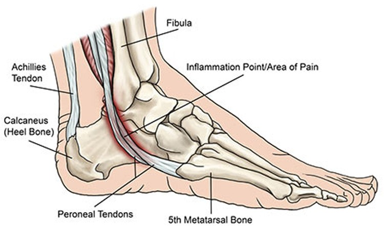Can You Run with Peroneal Tendonitis?