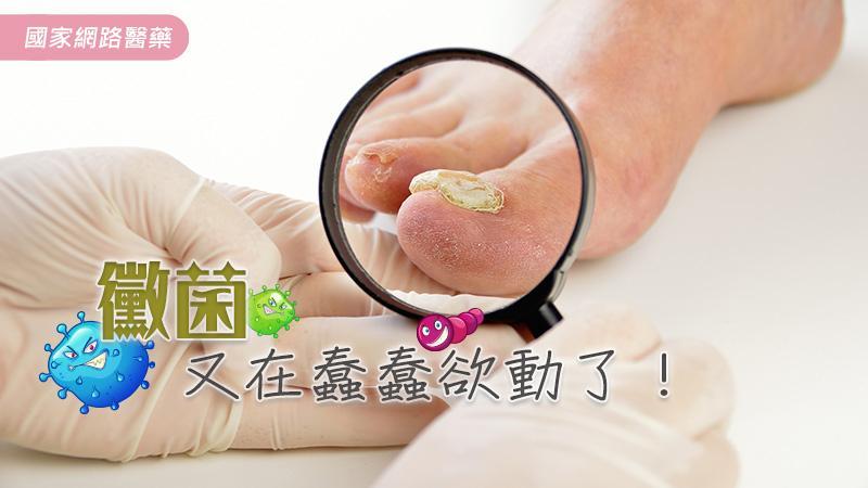 香港腳及灰指甲之藥物治療及注意事項   KingNet 國家網路醫藥   Second Opinion