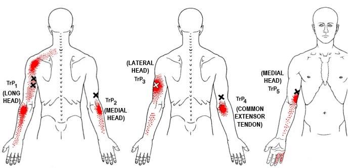 triceps brachii diagram daikin split ac wiring the definitive guide to anatomy exercises rehab trigger points