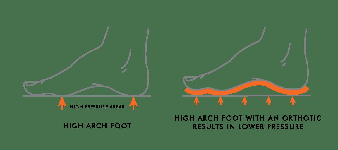 Safe pretty high arch feet for