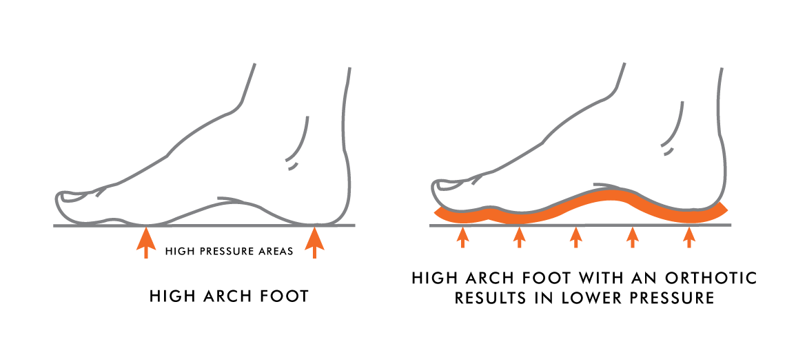 7fc69942df High Arches vs. Low Arches | Kintec: Footwear + Orthotics