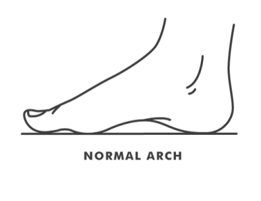 High Arches vs  Low Arches | Kintec: Footwear + Orthotics