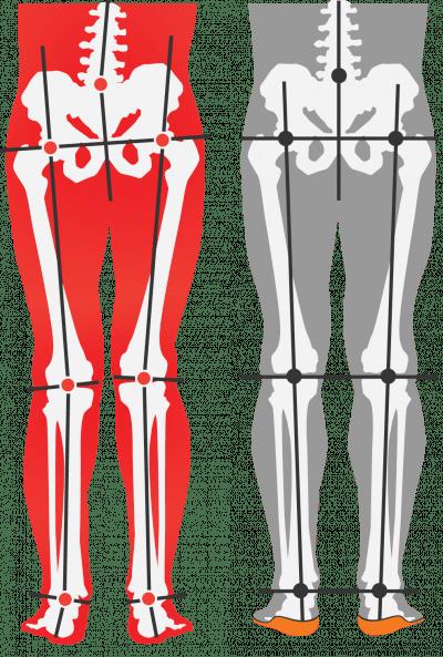 misaligned-vs-alignedwithorthotics