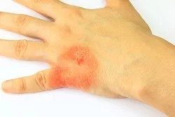 What does ringworm look like