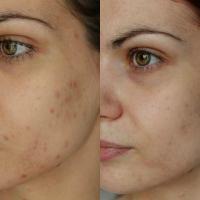 Skincare Routine ♡ Λιπαρό & Ακνεϊκό Δέρμα