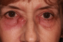 Photos of Tear Duct Surgery | Eyelid Plastic Surgery