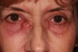 Photos of Tear Duct Surgery | Eyelid Plastic Surgery