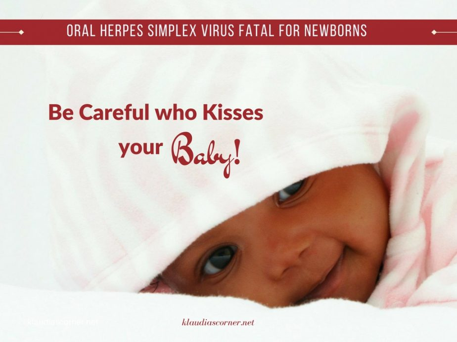 Oral Herpes Simplex Virus Fatal For Newborns - klaudiascorner.net