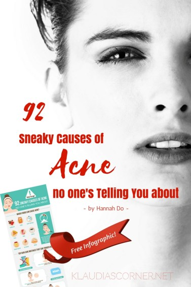 How To Cure Acne - 92 Sneaky Causes of Acne Free Printable Infographic by Hannah Do - klaudiascorner.net©