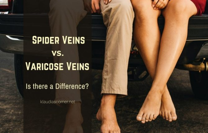 Spider Veins vs Varicose Veins - Is There A Difference?
