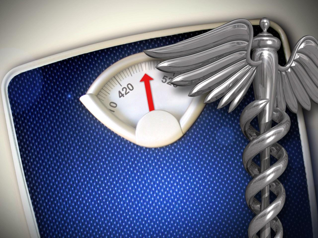 obesity_1536773017755.jpg