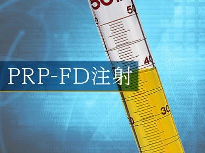 【PRP-FD治療】とは!(PRP-FD注射) ひざ治療ブログ@銀座の整形外科病院